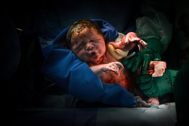Nascimento - Gabriel (23)